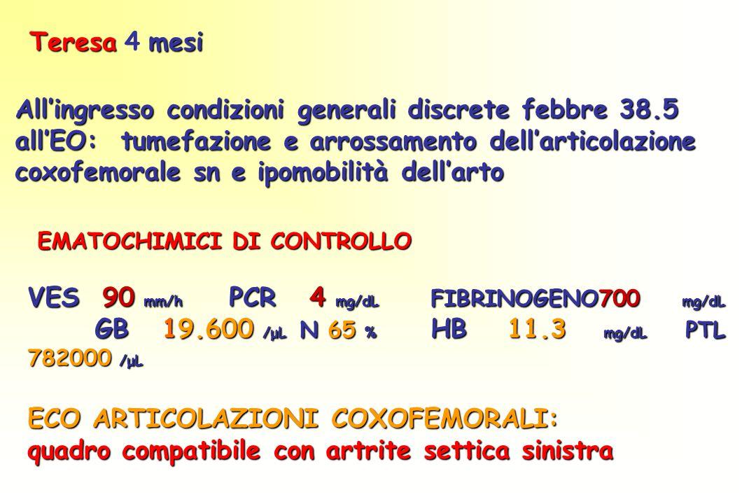 EMATOCHIMICI DI CONTROLLO EMATOCHIMICI DI CONTROLLO VES 90 mm/h PCR 4 mg/dL FIBRINOGENO700 mg/dL GB19.600 /μL N 65 % HB 11.3 mg/dL PTL 782000 /μL ECO ARTICOLAZIONI COXOFEMORALI: quadro compatibile con artrite settica sinistra Teresamesi Teresa 4 mesi Allingresso condizioni generali discrete febbre 38.5 allEO: tumefazione e arrossamento dellarticolazione coxofemorale sn e ipomobilità dellarto