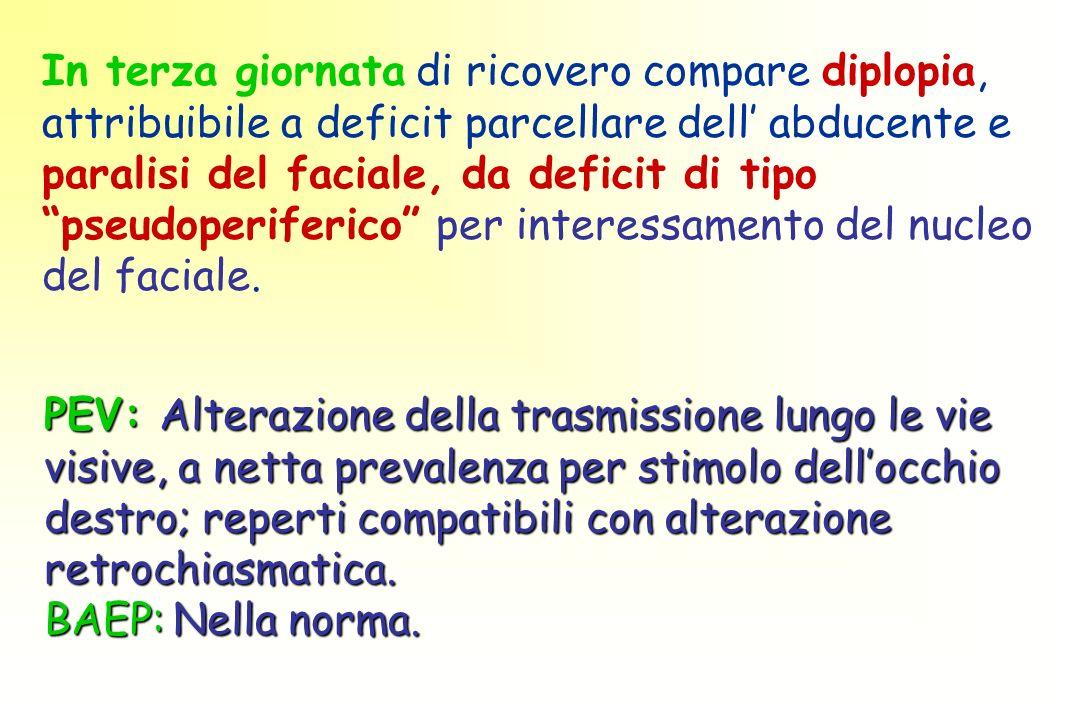 PEV: Alterazione della trasmissione lungo le vie visive, a netta prevalenza per stimolo dellocchio destro; reperti compatibili con alterazione retrochiasmatica.