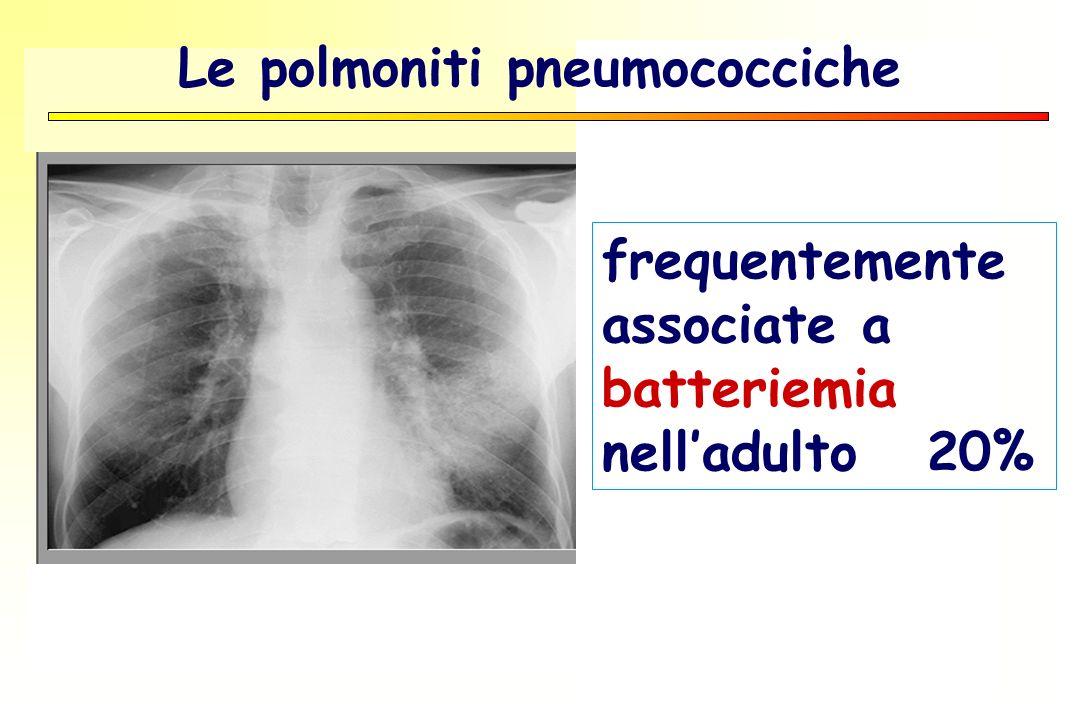 frequentemente associate a batteriemia nelladulto 20% Le polmoniti pneumococciche