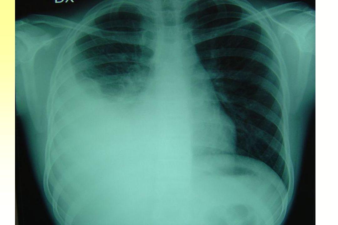 ESAMI STRUMENTALI RX TORACE: opacamento del campo polmonare inferiore destro per la presenza di addensamento parenchimale e marcato versamento pleurico.
