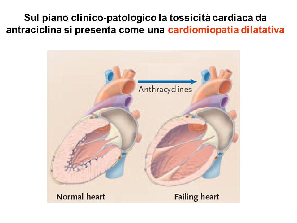 Sul piano clinico-patologico la tossicità cardiaca da antraciclina si presenta come una cardiomiopatia dilatativa