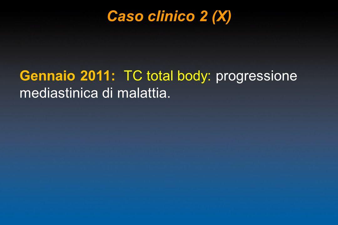 Caso clinico 2 (X) Gennaio 2011: TC total body: progressione mediastinica di malattia.