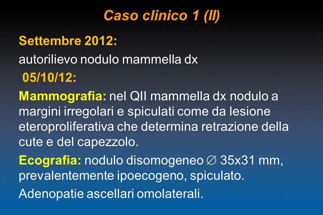 Caso clinico 1 (II) Settembre 2012: autorilievo nodulo mammella dx 05/10/12: Mammografia: nel QII mammella dx nodulo a margini irregolari e spiculati