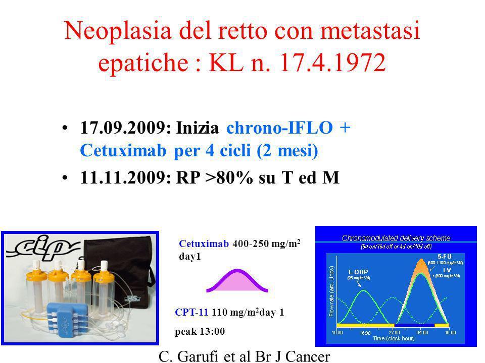 Neoplasia del retto con metastasi epatiche : KL n. 17.4.1972 17.09.2009: Inizia chrono-IFLO + Cetuximab per 4 cicli (2 mesi) 11.11.2009: RP >80% su T