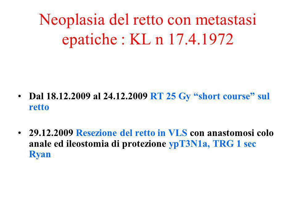 Neoplasia del retto con metastasi epatiche : KL n 17.4.1972 Dal 18.12.2009 al 24.12.2009 RT 25 Gy short course sul retto 29.12.2009 Resezione del rett