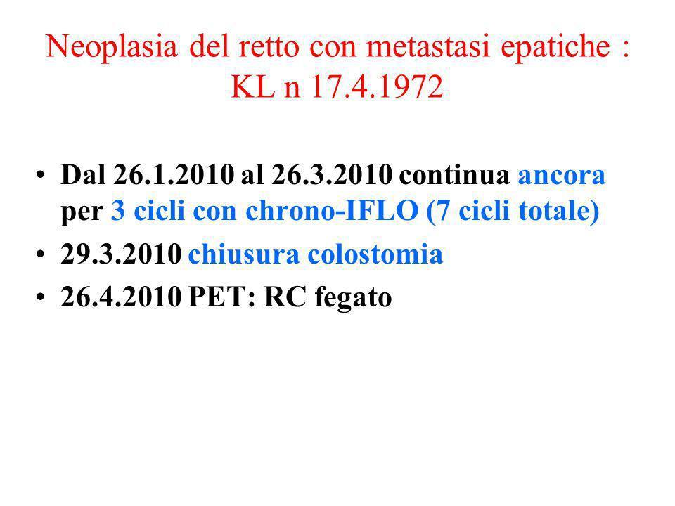 Neoplasia del retto con metastasi epatiche : KL n 17.4.1972 Dal 26.1.2010 al 26.3.2010 continua ancora per 3 cicli con chrono-IFLO (7 cicli totale) 29