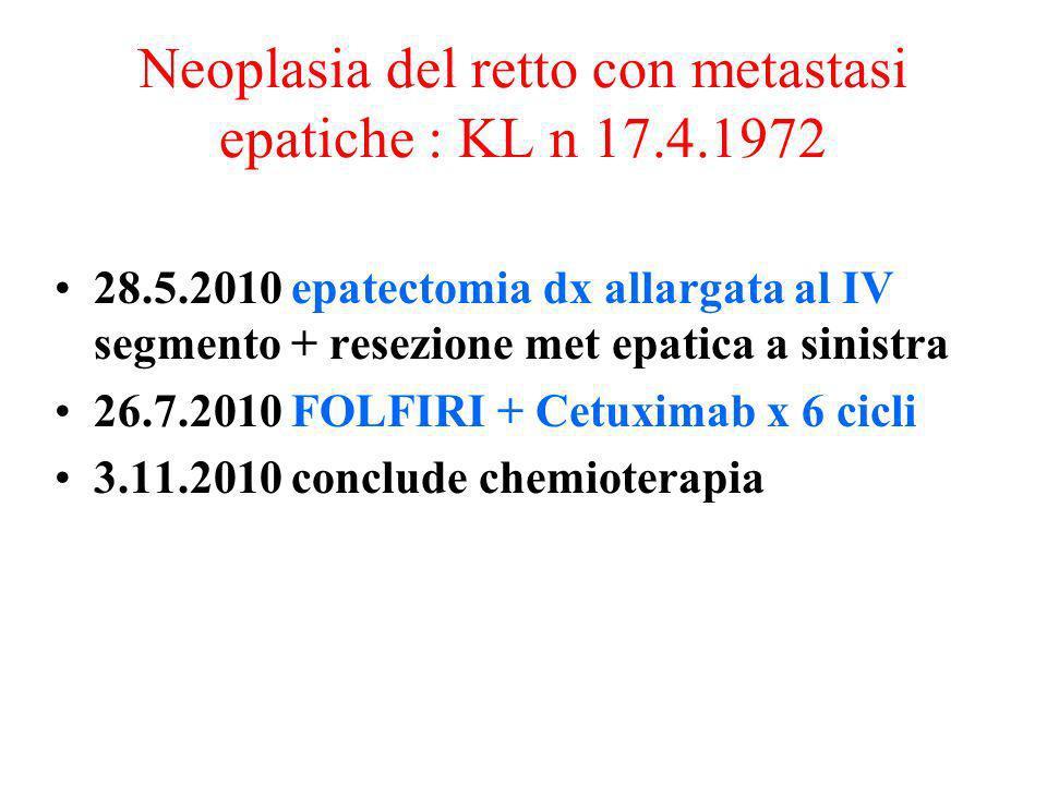 Neoplasia del retto con metastasi epatiche : KL n 17.4.1972 28.5.2010 epatectomia dx allargata al IV segmento + resezione met epatica a sinistra 26.7.