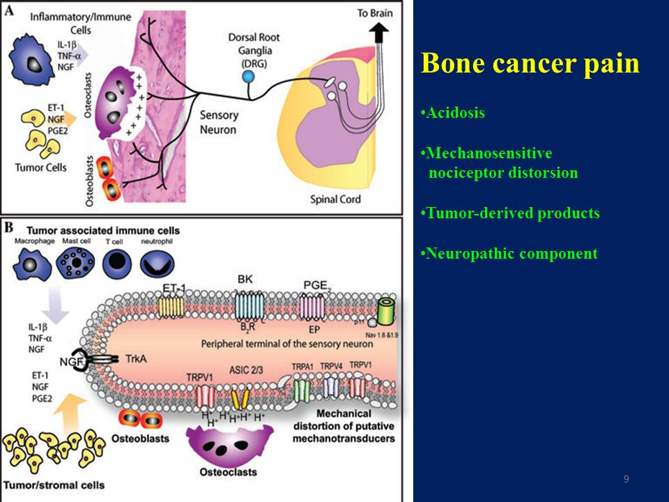 9 Bone cancer pain Acidosis Mechanosensitive nociceptor distorsion Tumor-derived products Neuropathic component