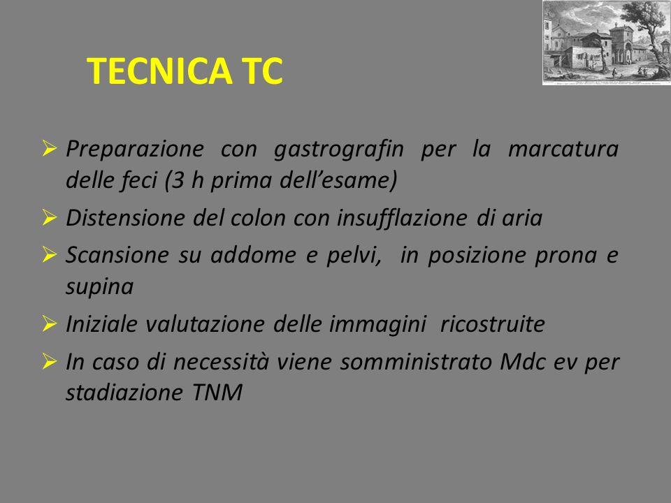 TECNICA TC Preparazione con gastrografin per la marcatura delle feci (3 h prima dellesame) Distensione del colon con insufflazione di aria Scansione su addome e pelvi, in posizione prona e supina Iniziale valutazione delle immagini ricostruite In caso di necessità viene somministrato Mdc ev per stadiazione TNM