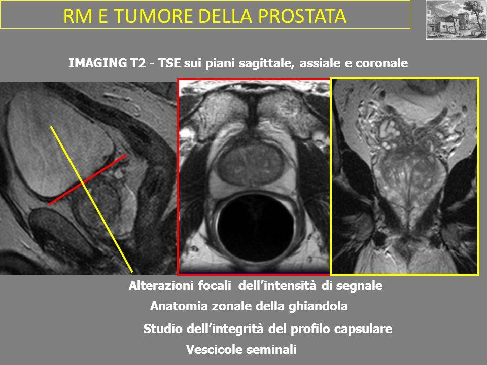 IMAGING T2 - TSE sui piani sagittale, assiale e coronale Anatomia zonale della ghiandola Studio dellintegrità del profilo capsulare Vescicole seminali Alterazioni focali dellintensità di segnale RM E TUMORE DELLA PROSTATA