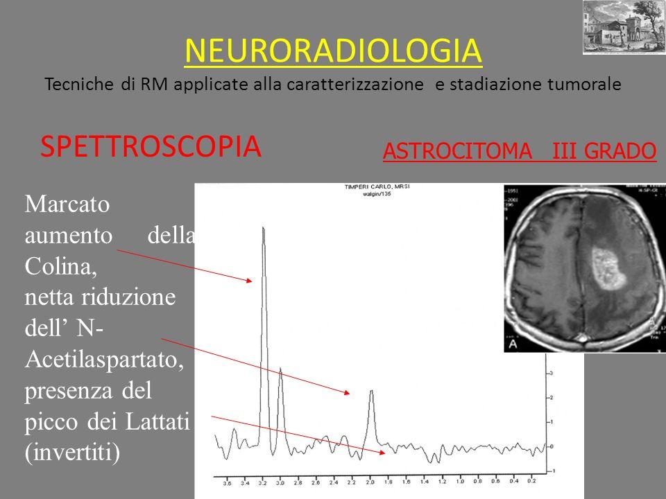 NEURORADIOLOGIA Tecniche di RM applicate alla caratterizzazione e stadiazione tumorale SPETTROSCOPIA ASTROCITOMA III GRADO Marcato aumento della Colina, netta riduzione dell N- Acetilaspartato, presenza del picco dei Lattati (invertiti)
