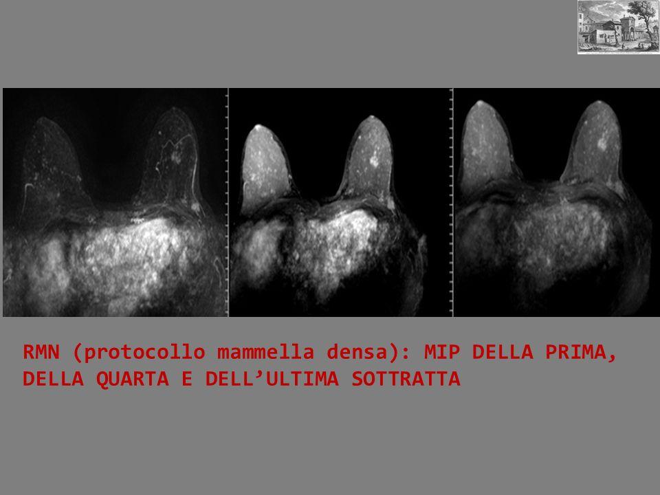 RMN (protocollo mammella densa): MIP DELLA PRIMA, DELLA QUARTA E DELLULTIMA SOTTRATTA