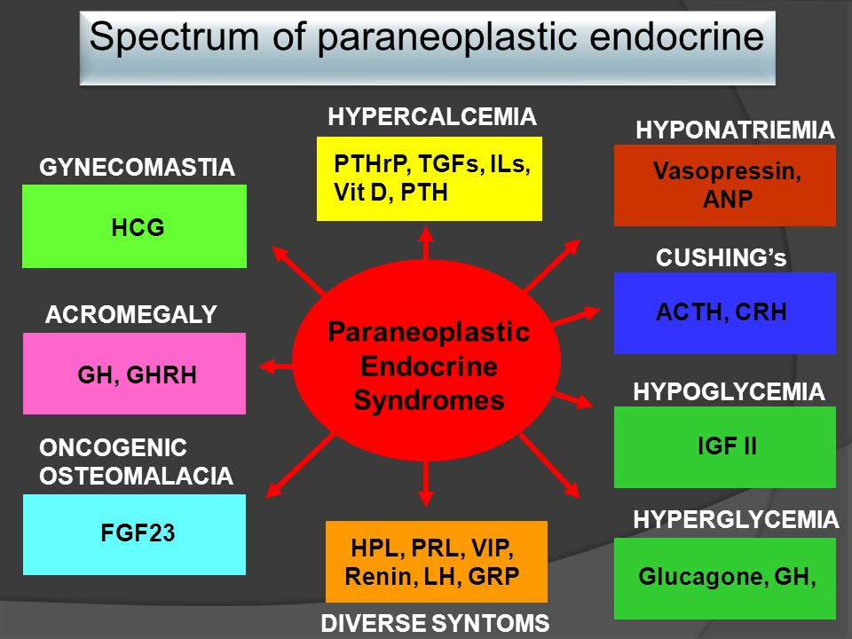 Paraneoplastic Endocrine Syndromes PTHrP, TGFs, ILs, Vit D, PTH HYPERCALCEMIA ONCOGENIC OSTEOMALACIA ACROMEGALY GYNECOMASTIA HYPONATRIEMIA CUSHINGs HYPOGLYCEMIA DIVERSE SYNTOMS HCG FGF23 GH, GHRH IGF II ACTH, CRH Vasopressin, ANP HPL, PRL, VIP, Renin, LH, GRP Spectrum of paraneoplastic endocrine HYPERGLYCEMIA Glucagone, GH,