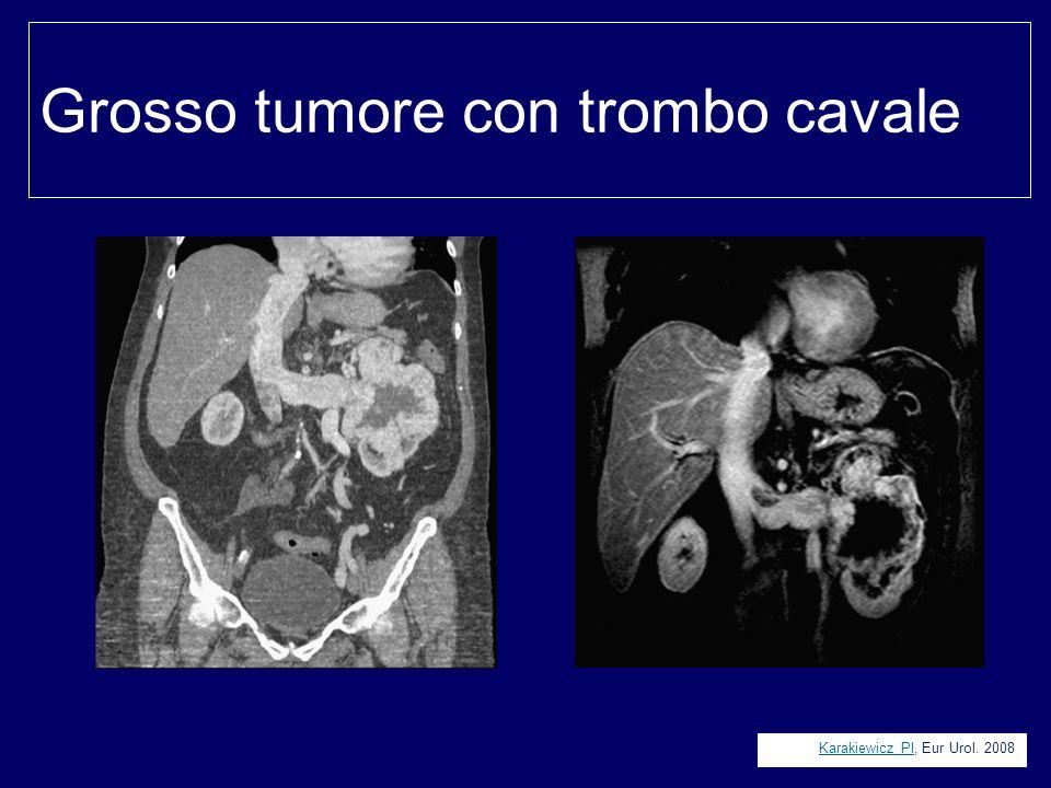 Indicazioni a terapia neoadiuvante 3 scenari 1 Tumorectomia possibile 2 Tumorectomia non possibile 3 Metastatici alla diagnosi T1 e T2 (selezionati) No studi ?.