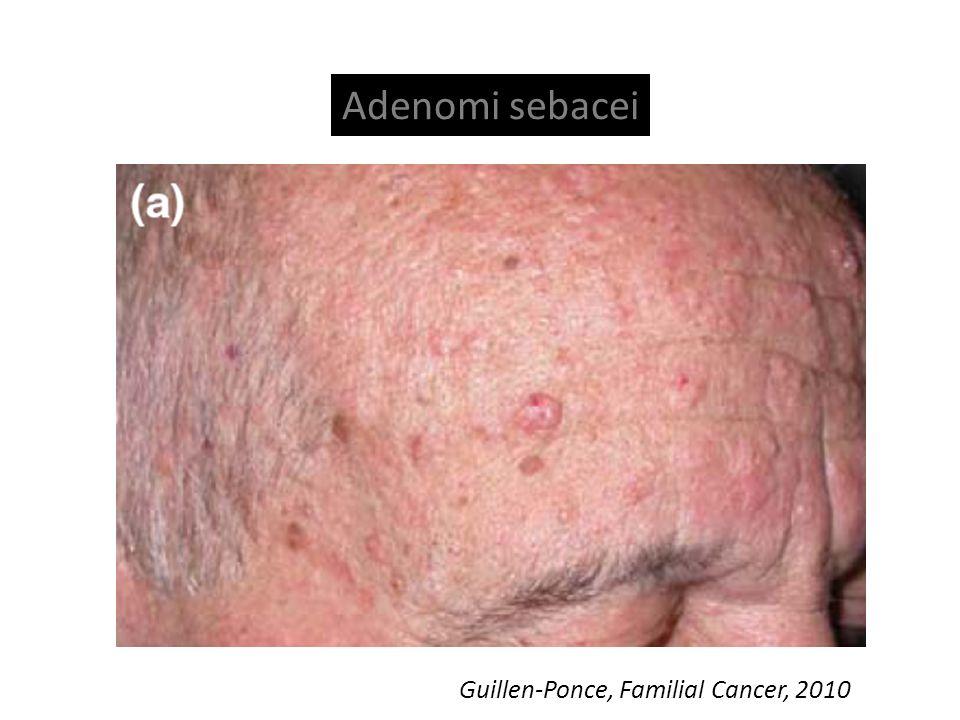 Guillen-Ponce, Familial Cancer, 2010 Adenomi sebacei