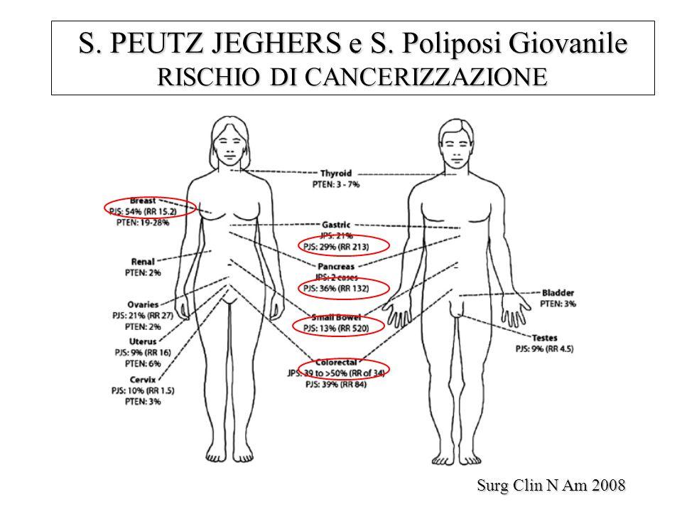 Surg Clin N Am 2008 S. PEUTZ JEGHERS e S. Poliposi Giovanile RISCHIO DI CANCERIZZAZIONE