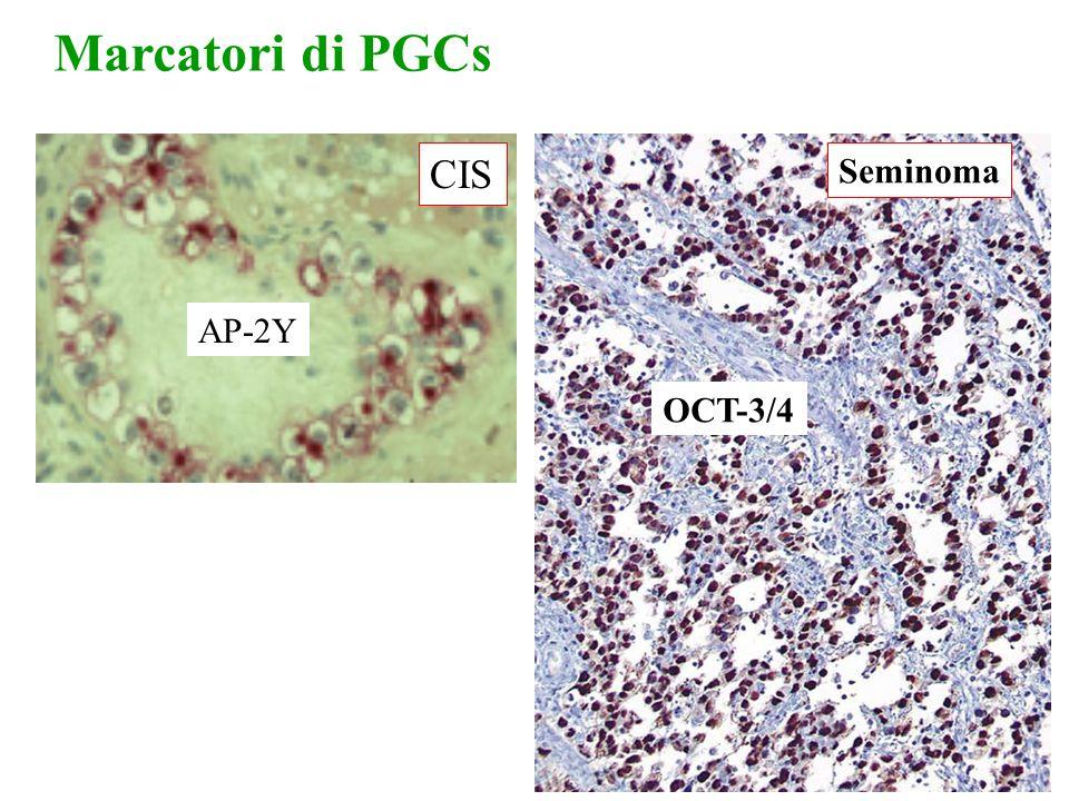 OCT-3/4 Seminoma Marcatori di PGCs AP-2Y CIS