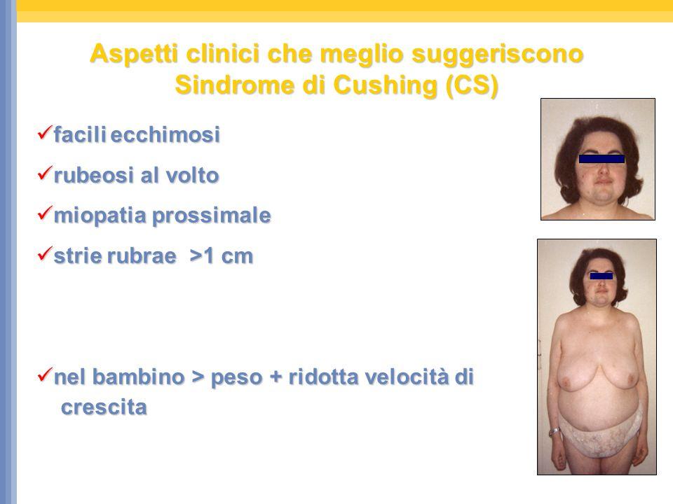 Aspetti clinici che meglio suggeriscono Sindrome di Cushing (CS) facili ecchimosi facili ecchimosi rubeosi al volto rubeosi al volto miopatia prossima