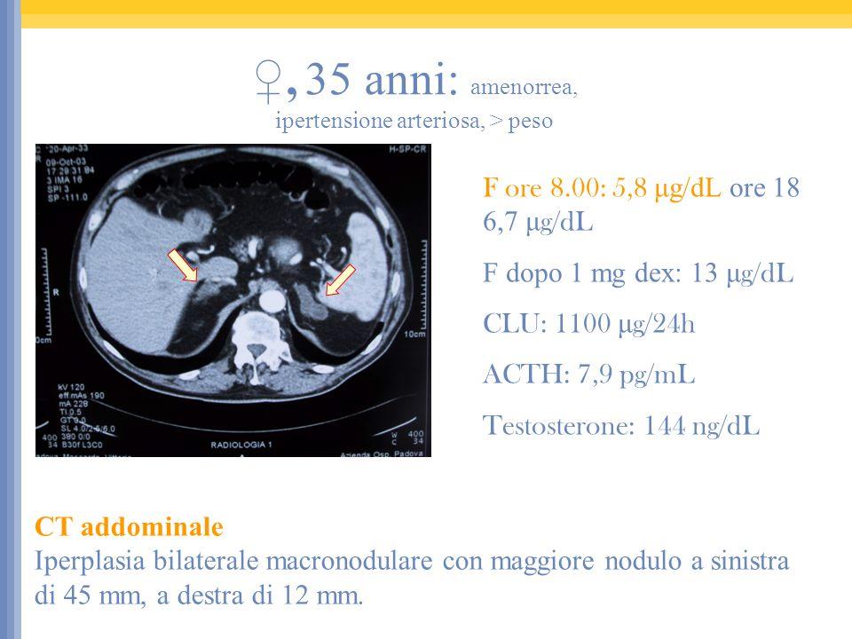 CT addominale Iperplasia bilaterale macronodulare con maggiore nodulo a sinistra di 45 mm, a destra di 12 mm. F ore 8.00: 5,8 μg/dL ore 18 6,7 μ g/dL