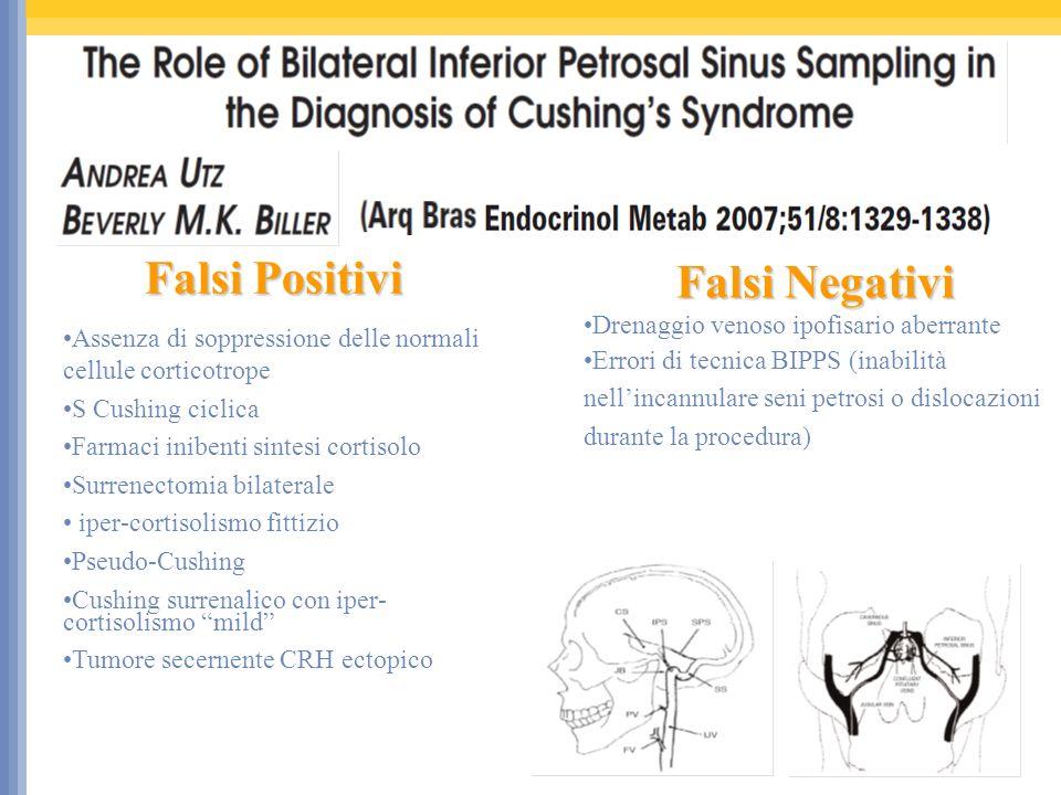 Falsi Negativi Drenaggio venoso ipofisario aberrante Errori di tecnica BIPPS (inabilità nellincannulare seni petrosi o dislocazioni durante la procedura) Falsi Positivi Assenza di soppressione delle normali cellule corticotrope S Cushing ciclica Farmaci inibenti sintesi cortisolo Surrenectomia bilaterale iper-cortisolismo fittizio Pseudo-Cushing Cushing surrenalico con iper- cortisolismo mild Tumore secernente CRH ectopico
