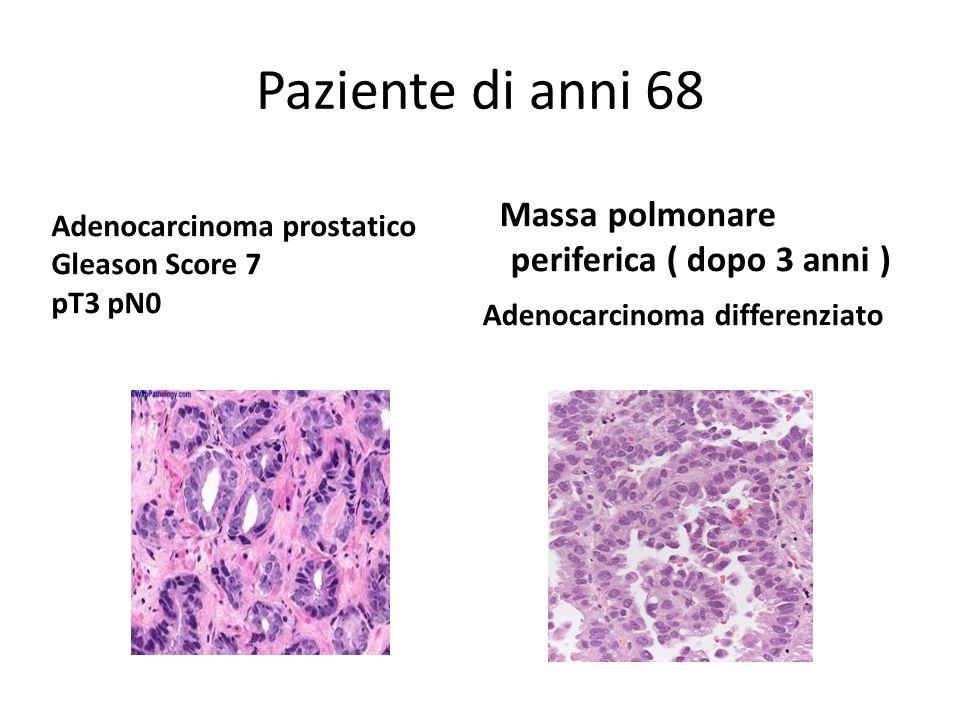 Paziente di anni 68 Massa polmonare periferica ( dopo 3 anni ) Adenocarcinoma differenziato Adenocarcinoma prostatico Gleason Score 7 pT3 pN0