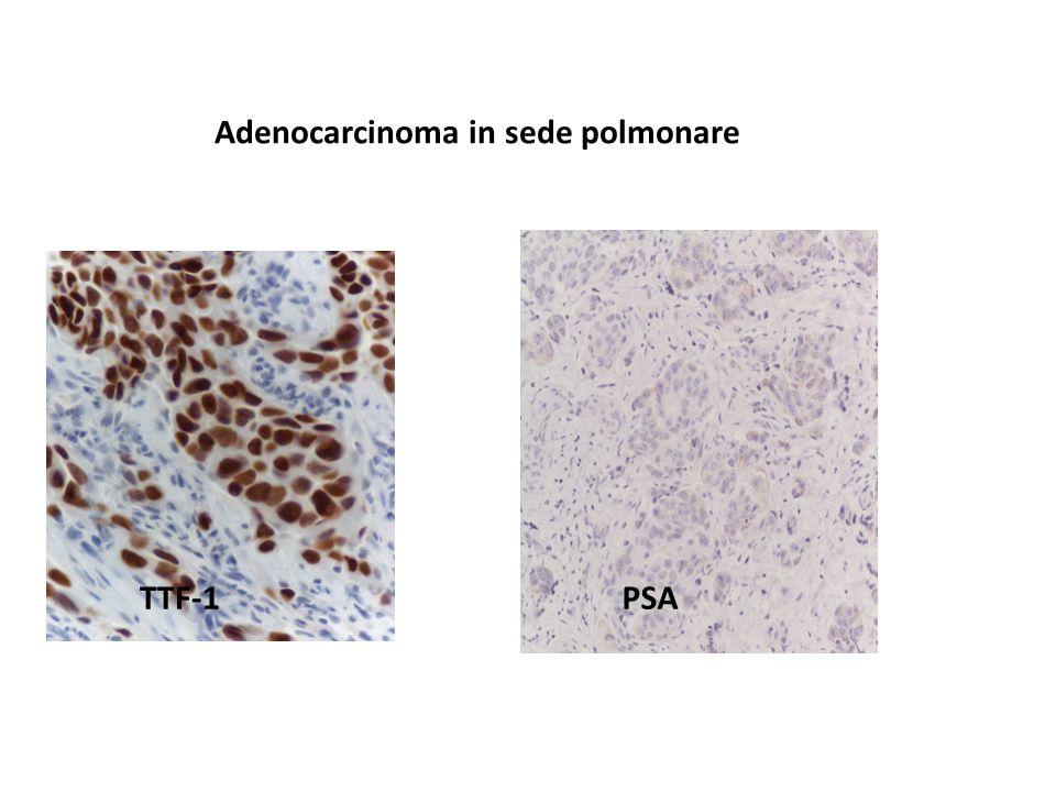 TTF-1PSA Adenocarcinoma in sede polmonare