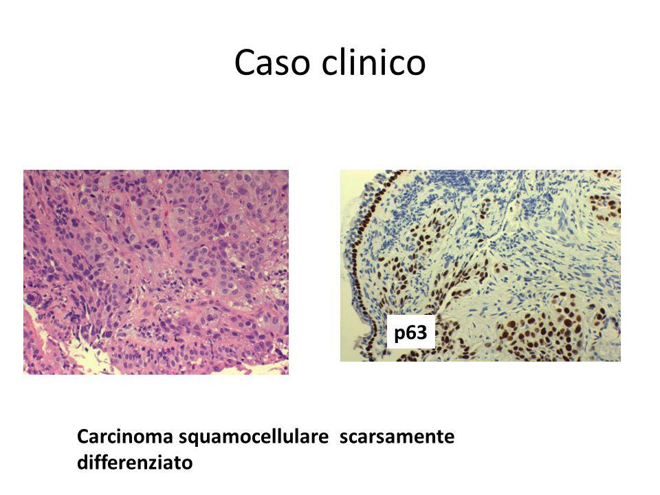 Caso clinico p63 Carcinoma squamocellulare scarsamente differenziato