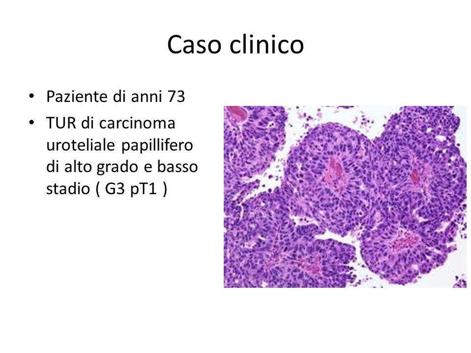 Caso clinico Paziente di anni 73 TUR di carcinoma uroteliale papillifero di alto grado e basso stadio ( G3 pT1 )