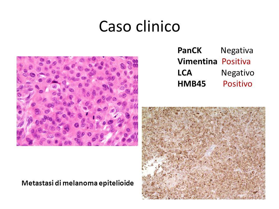 Caso clinico Metastasi di melanoma epitelioide PanCK Negativa Vimentina Positiva LCA Negativo HMB45 Positivo