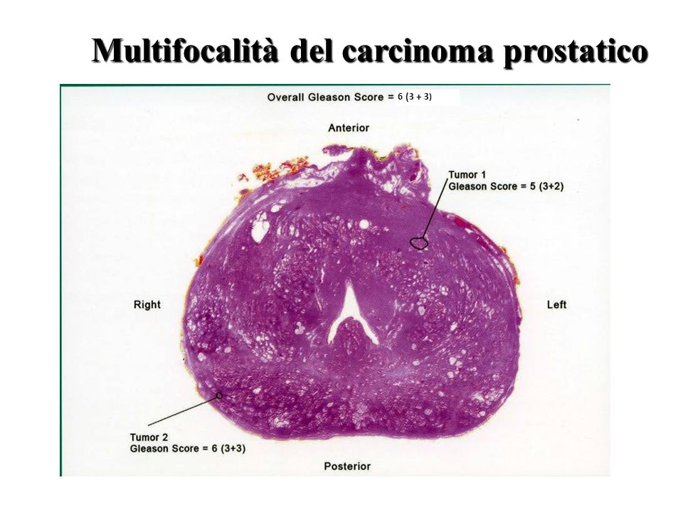 Multifocalità del carcinoma prostatico 6 (3 + 3 )