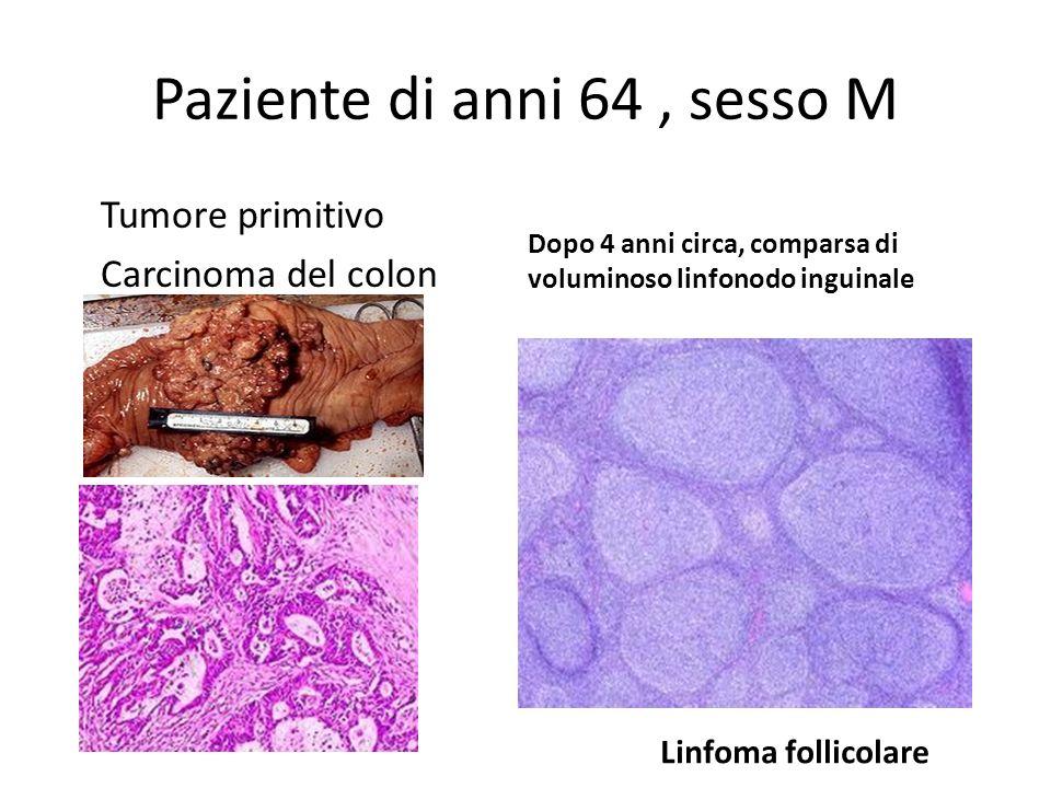 Paziente di anni 64, sesso M Tumore primitivo Carcinoma del colon Dopo 4 anni circa, comparsa di voluminoso linfonodo inguinale Linfoma follicolare