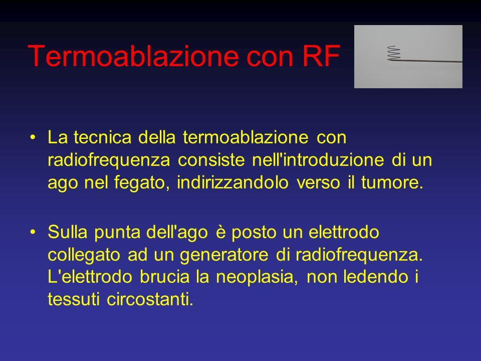 Termoablazione con RF La tecnica della termoablazione con radiofrequenza consiste nell'introduzione di un ago nel fegato, indirizzandolo verso il tumo