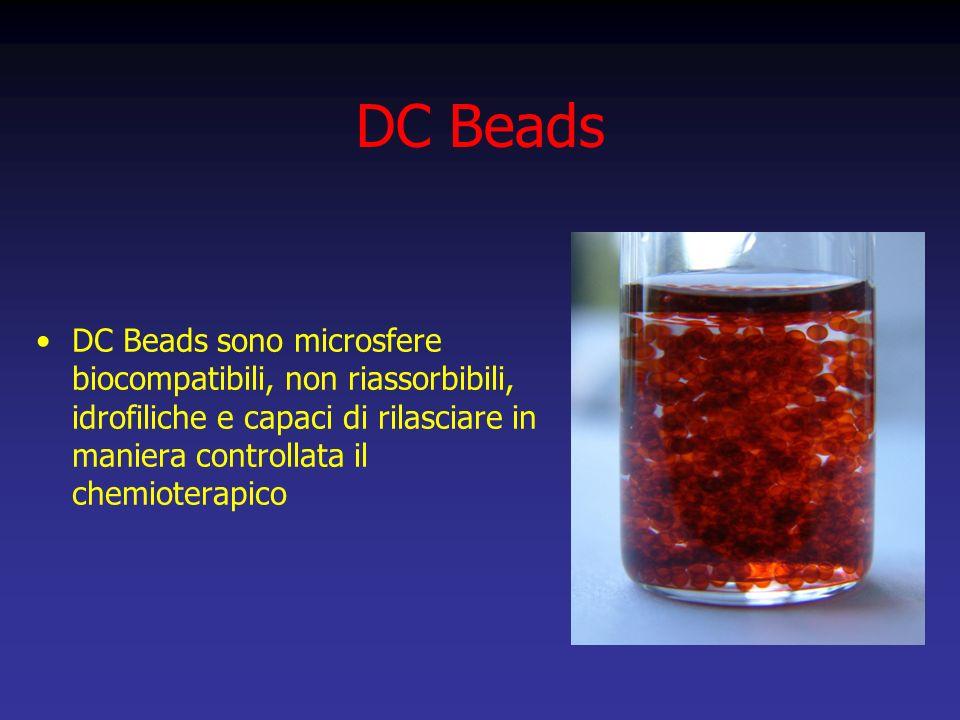 DC Beads DC Beads sono microsfere biocompatibili, non riassorbibili, idrofiliche e capaci di rilasciare in maniera controllata il chemioterapico