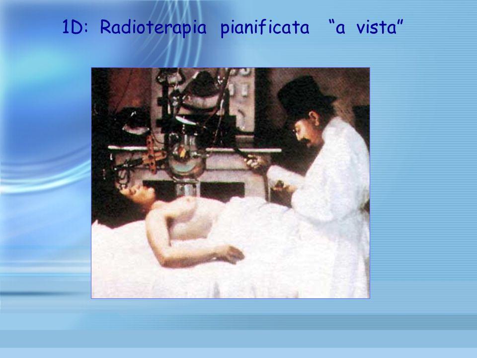 1D: Radioterapia pianificata a vista