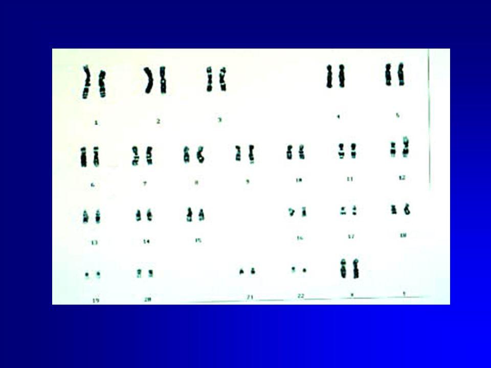 STUDI DI LINKAGE Ca prostatico forma dominante cr. 12 e 14 Ca prostatico forma recessiva cr. 1 e 16