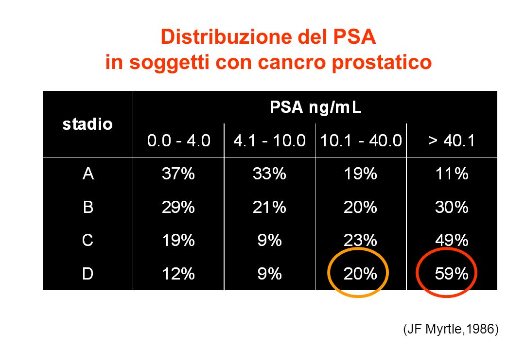Distribuzione del PSA in soggetti con cancro prostatico (JF Myrtle,1986)