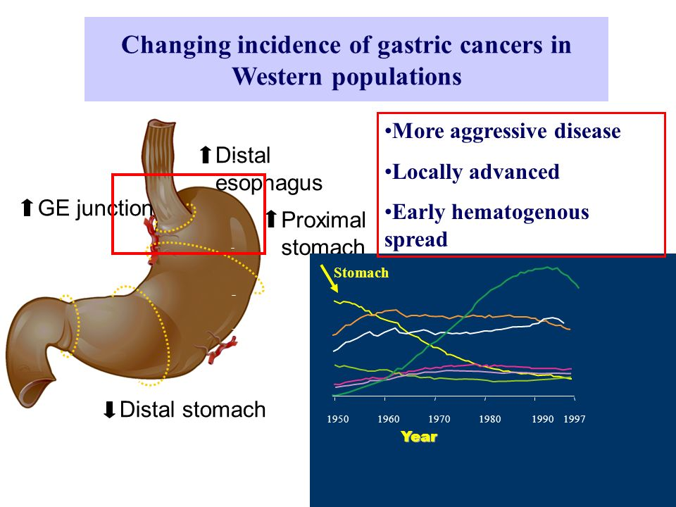 Stomach Cancer - Presentation Location at Presentation USItaly (1980) (2000) Upper third:37% 12% 30% Middle third: 20% 70% 50% Lower third:30% 15% 10% Diffuse: 12% 3% 10%
