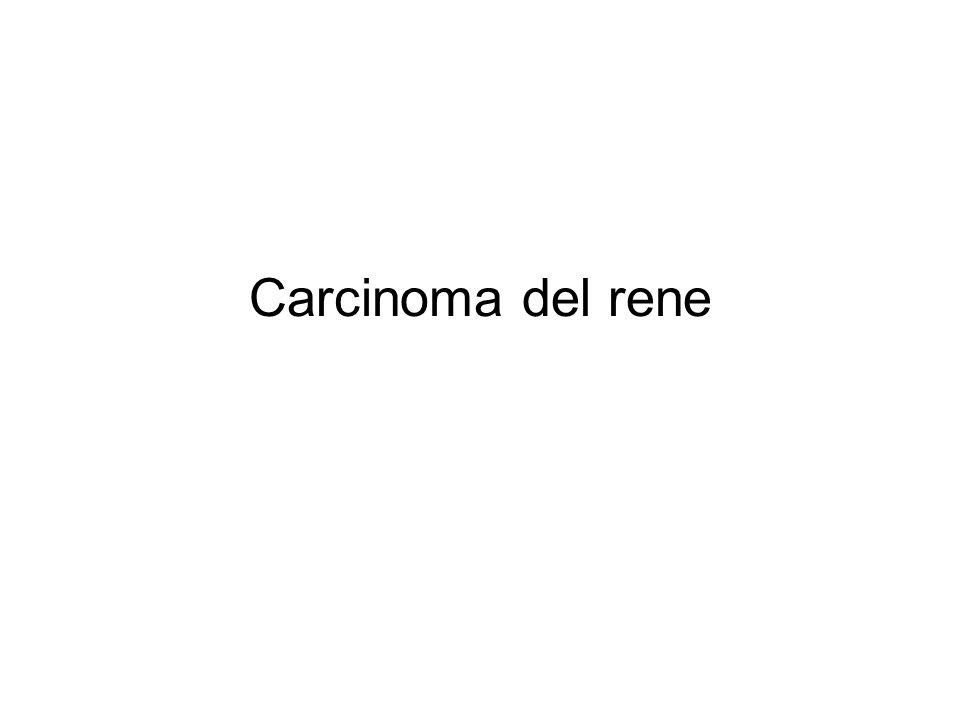 Carcinoma del rene