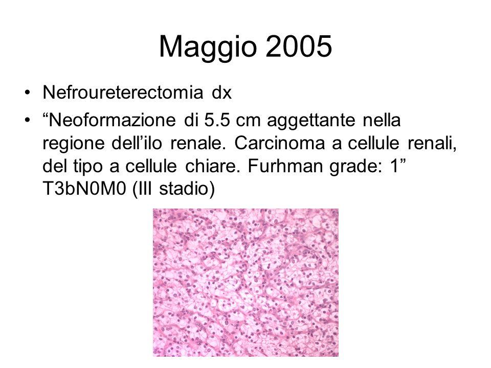 Maggio 2005 Nefroureterectomia dx Neoformazione di 5.5 cm aggettante nella regione dellilo renale. Carcinoma a cellule renali, del tipo a cellule chia