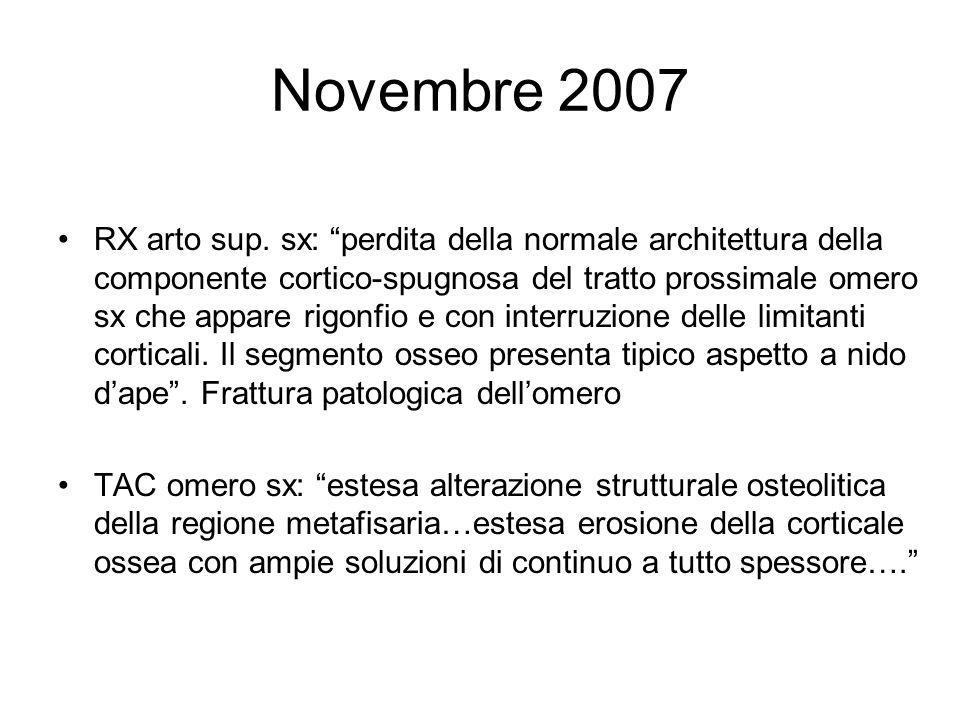 Novembre 2007 RX arto sup. sx: perdita della normale architettura della componente cortico-spugnosa del tratto prossimale omero sx che appare rigonfio