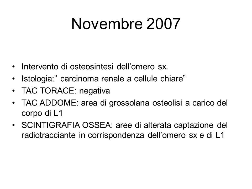 Novembre 2007 Intervento di osteosintesi dellomero sx. Istologia: carcinoma renale a cellule chiare TAC TORACE: negativa TAC ADDOME: area di grossolan