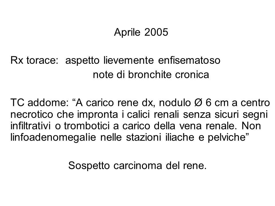 Aprile 2005 Rx torace: aspetto lievemente enfisematoso note di bronchite cronica TC addome: A carico rene dx, nodulo Ø 6 cm a centro necrotico che imp