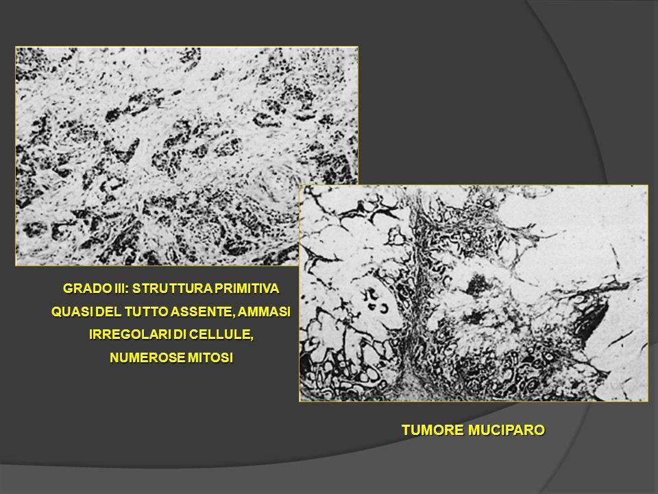 GRADO III: STRUTTURA PRIMITIVA QUASI DEL TUTTO ASSENTE, AMMASI IRREGOLARI DI CELLULE, NUMEROSE MITOSI TUMORE MUCIPARO
