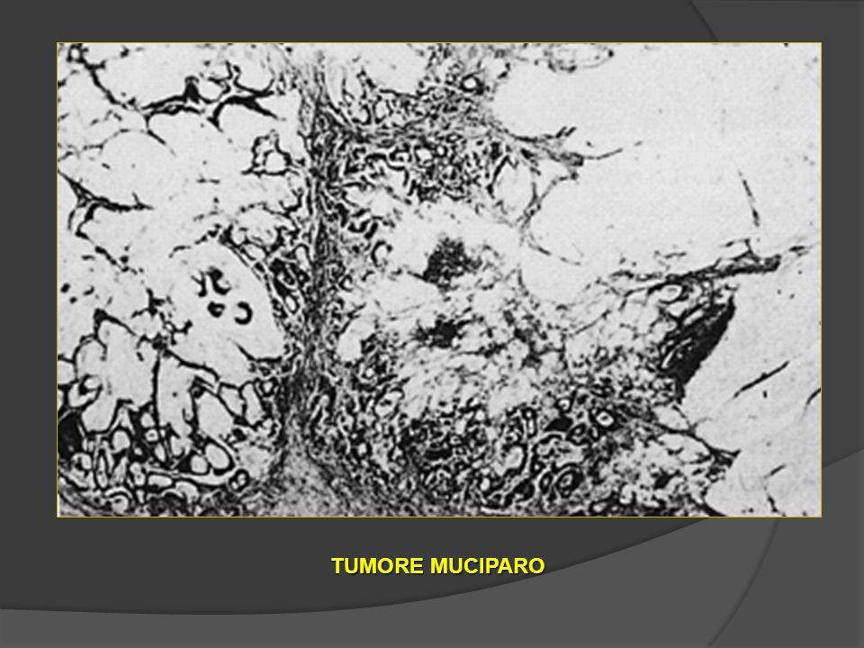 TUMORE MUCIPARO