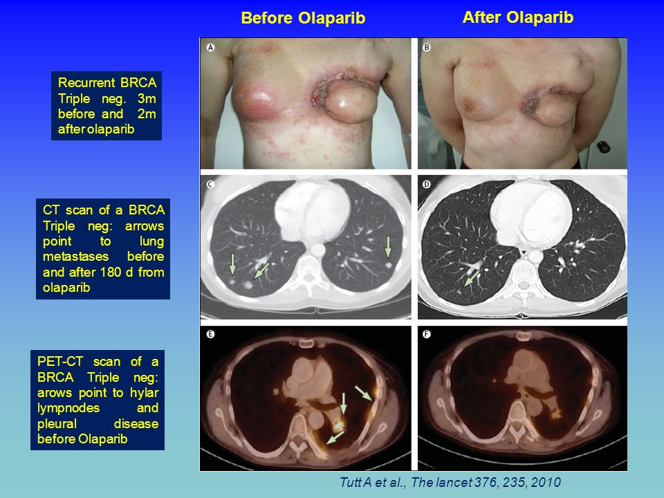Recurrent BRCA Triple neg. 3m before and 2m after olaparib CT scan of a BRCA Triple neg: arrows point to lung metastases before and after 180 d from o