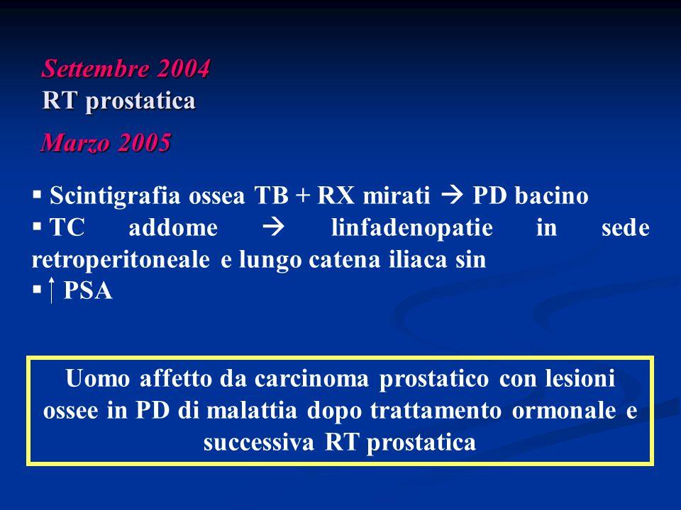 Settembre 2004 RT prostatica Marzo 2005 Uomo affetto da carcinoma prostatico con lesioni ossee in PD di malattia dopo trattamento ormonale e successiv
