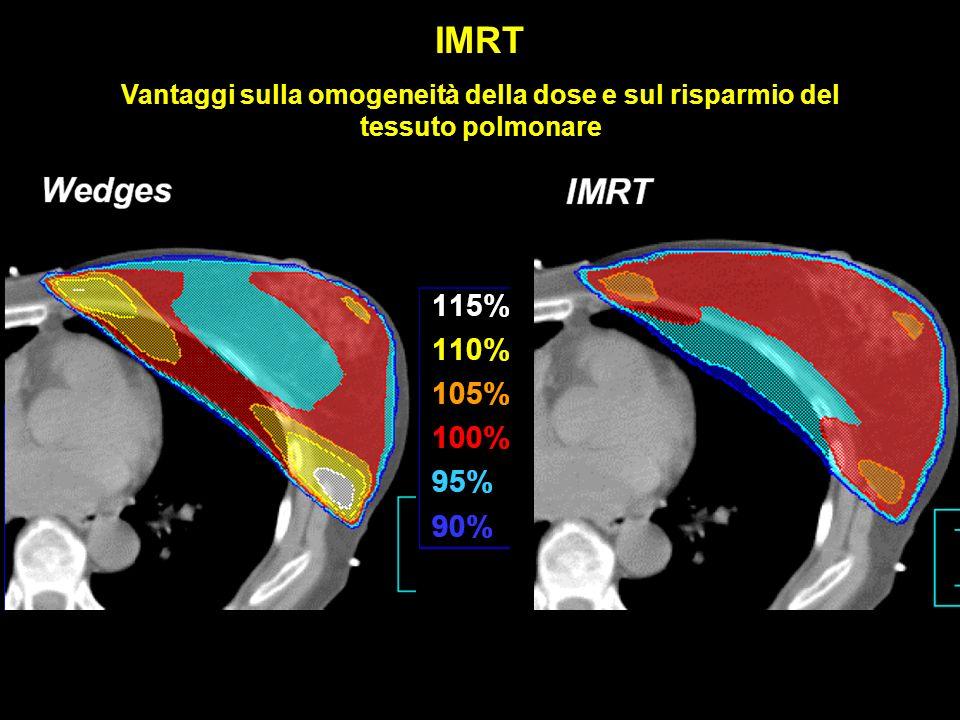 Vantaggi sulla omogeneità della dose e sul risparmio del tessuto polmonare