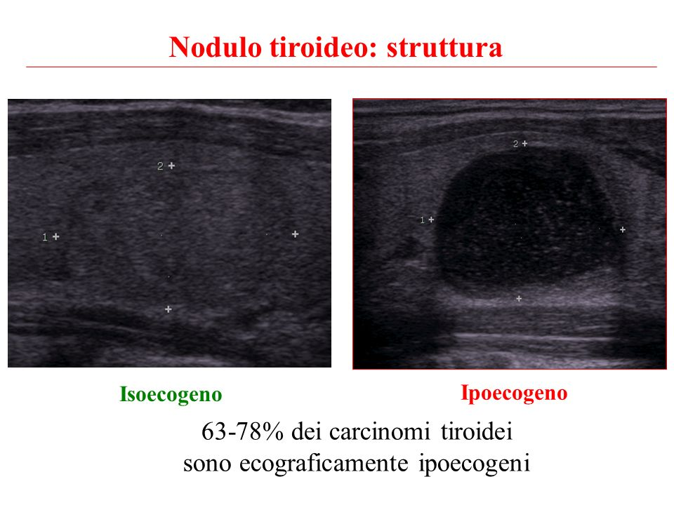 Nodulo tiroideo: struttura 63-78% dei carcinomi tiroidei sono ecograficamente ipoecogeni Isoecogeno Ipoecogeno