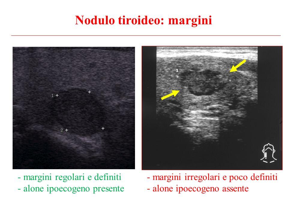 - margini irregolari e poco definiti - alone ipoecogeno assente - margini regolari e definiti - alone ipoecogeno presente Nodulo tiroideo: margini