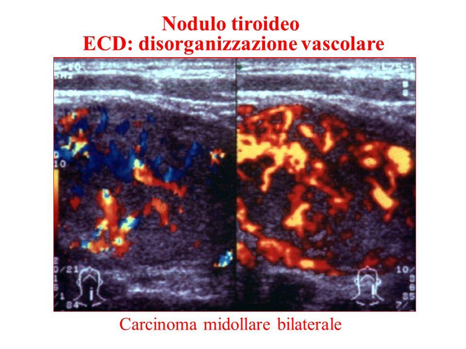 Nodulo tiroideo ECD: disorganizzazione vascolare Carcinoma midollare bilaterale